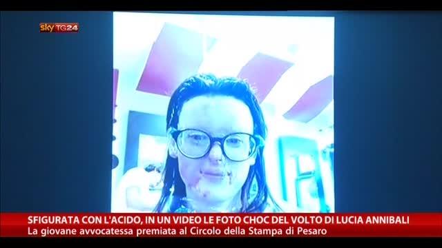 Sfigurata con l'acido, nel video foto choc di Lucia Annibali