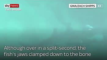 Man survives shark bite to the head